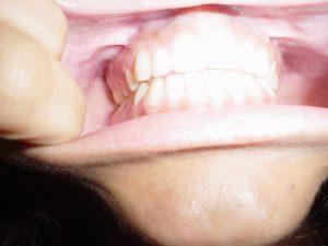 Otthoni fogfehérítő