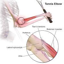 A teniszkönyök gyógyítása könnyen is kivitelezhető